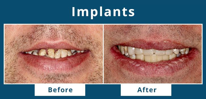 implants1