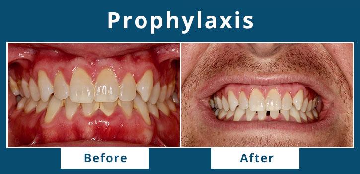 prophylaxis1