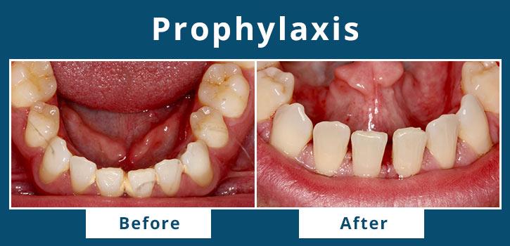 prophylaxis2