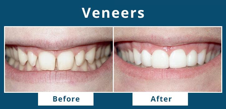 veneers1
