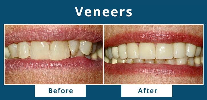 veneers4